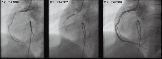 冠動脈拡張術