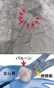 肺静脈隔離術(冷凍焼灼アブレーション)