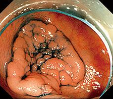 大腸ESD