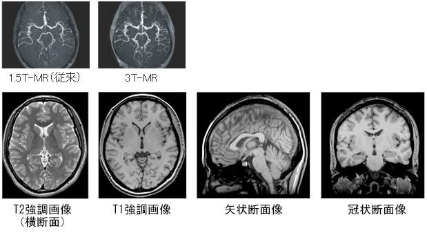 写真:脳血管画像の比較