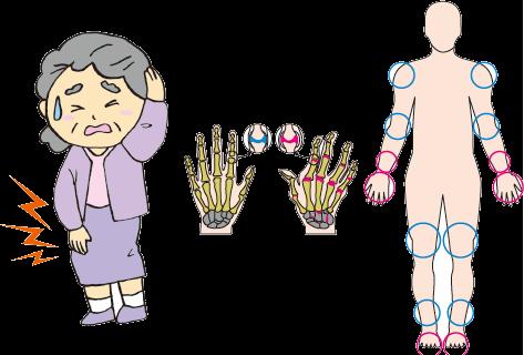 リウマチ 症状 関節