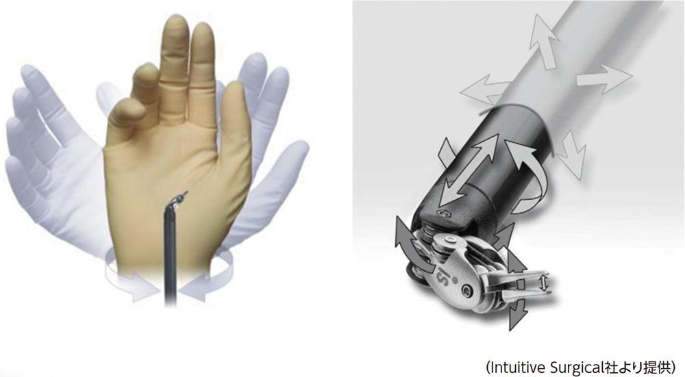 手術支援ロボットで行う低侵襲手術