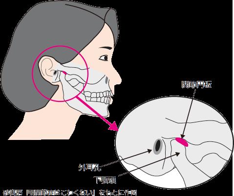 額 関節 痛 症 治療 法
