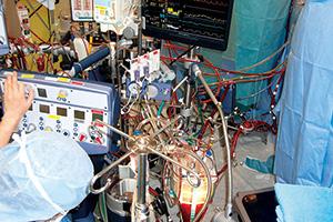 人工心肺装置